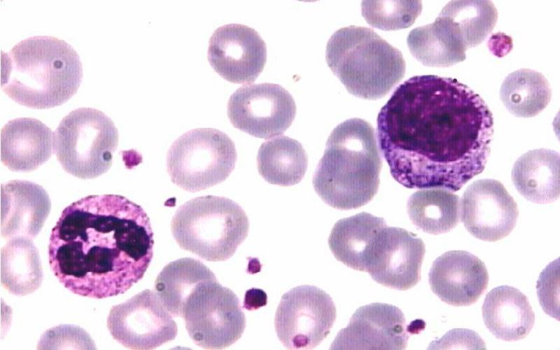 Neutrófilos bajos