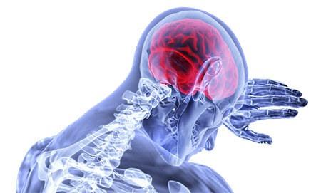 ¿Se puede prevenir una isquemia cerebral?