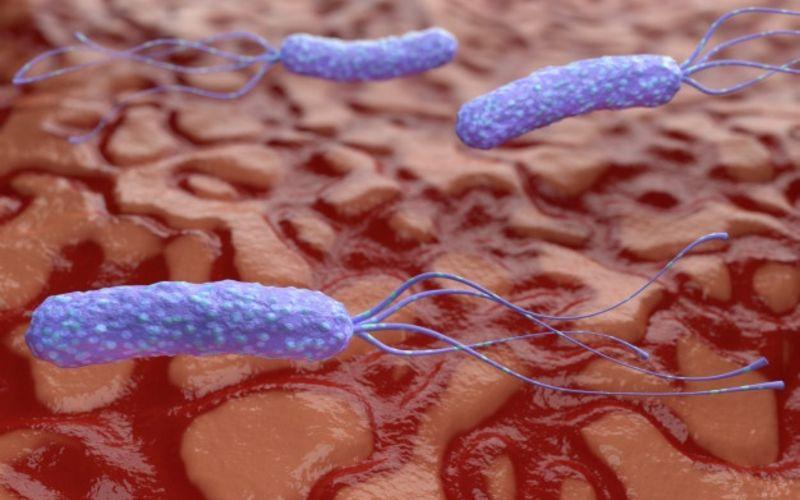 Helicobacter pylori : qué es, cómo se transmite y síntomas