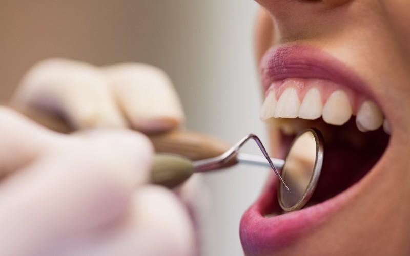 7 situaciones comunes en las que deberías visitar al dentista