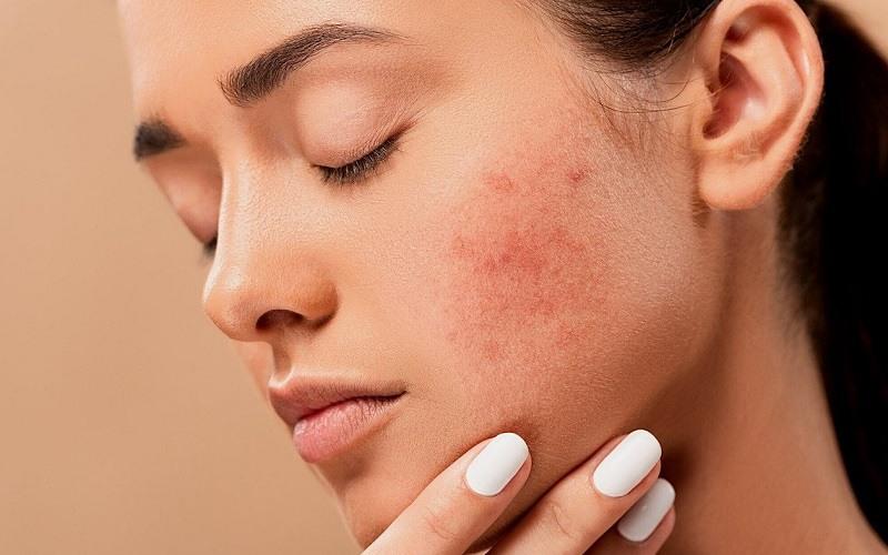 Tratar el acné de manera natural con probióticos